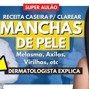 RECEITA CASEIRA p/ CLAREAR MANCHA DE PELE ! Melasma , Manchas nas Axilas , Virilhas