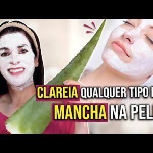 CLAREIA MANCHAS NA PELE Difíceis de Sair, Inclusive MELASMA e Olheiras
